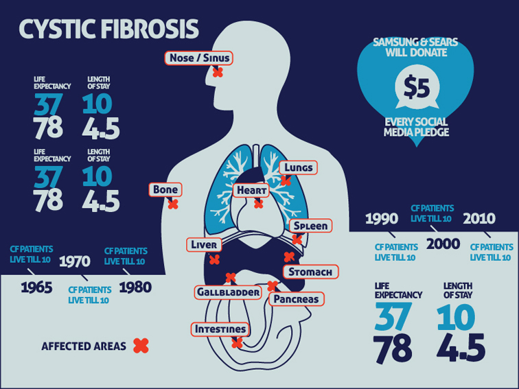 Tackle Cystic Fibrosis 588